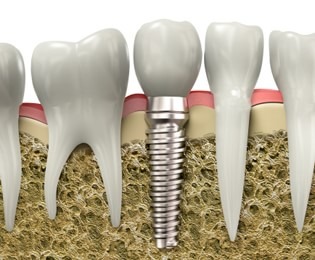 Dental Implants Centerville - Dental Implant Graphic