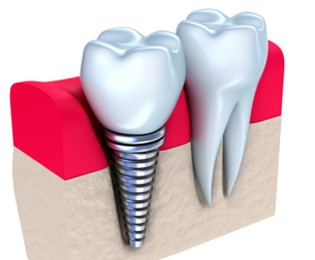 Dental Implants Centerville - Dental Implant Graphic 2