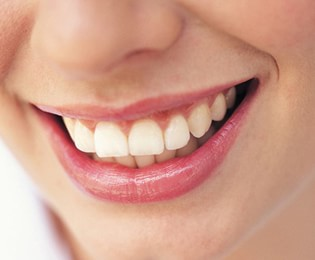 Teeth Whitening Centerville - Smiling Woman