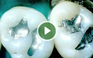 Mercury Free Dentist in Centerville OH - IAOMT Video3