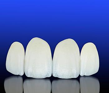Dr. Daniel Cobb, Alex Bell Dental Image Of Teeth