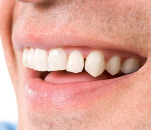 "Dr. Daniel Cobb, Alex Bell Dental Kettering, OH area patients ask, ""How do I care for my porcelain veneers?"""