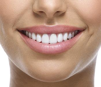 Dr. Daniel Cobb, Alex Bell Dental Describing How Porcelain veneers can transform the smile of Dayton area patients