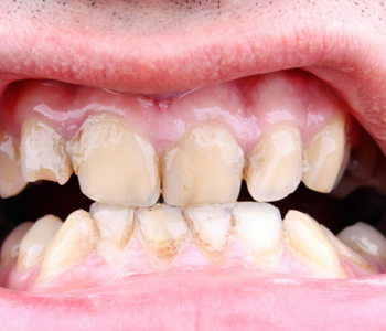 Dr. Daniel Cobb, Alex Bell Dental Describes What Centerville, Ohio patients can expect after full mouth reconstruction with dental implants