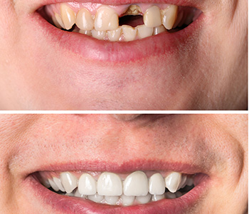 Dr. Daniel Cobb, Alex Bell Dental Image Of Before and After Broken teeth