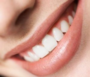 Advantages of Teeth Whitening from a dentist in Centerville