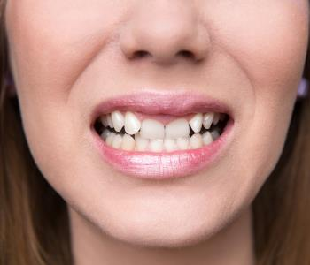 Gingivitis treatment from dentist in Centerville OH