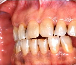 Best gum disease treatment options from dentist in Centerville