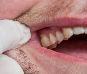 Soft tissue periodontal surgery (gum grafting)