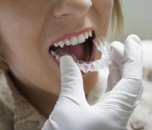 A beautiful smile with Teeth Whitening in Bellbrook