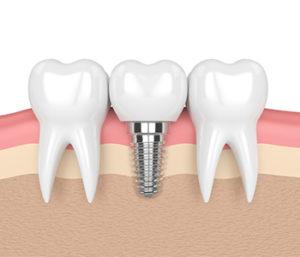 Titanium Implants near Centerville, OH