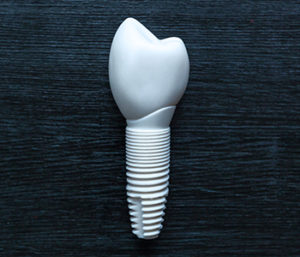 Zirconium Implants near Centerville, OH