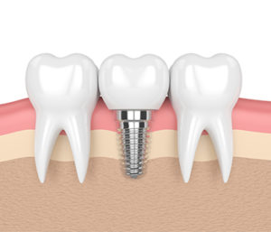 Dental Implants near Centerville, OH