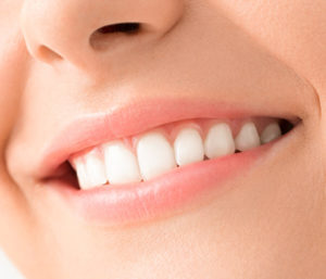 Get Your Dental Zoom Whitening in Centerville OH Area to Get Rid of Yellowing and Stains